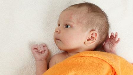 生後1ヶ月 湿疹