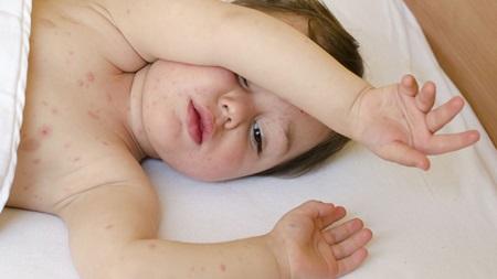 生後6ヶ月 湿疹