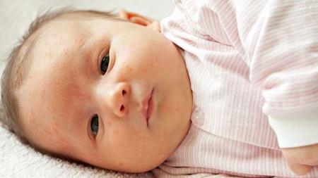 生後2ヶ月 湿疹
