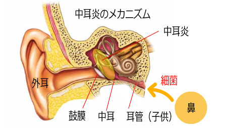 中耳炎のメカニズム