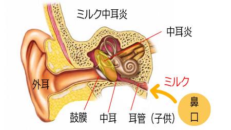 ミルク中耳炎