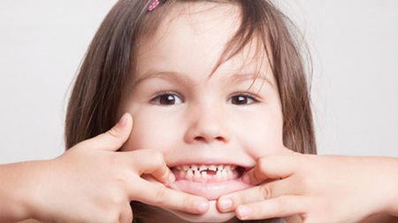 歯並びや擦り減りへの影響