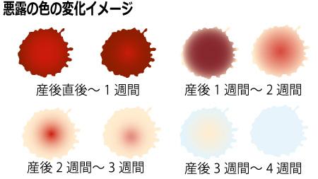 悪露の色の変化イメージ