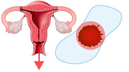 産後の出血は悪露と呼ばれる