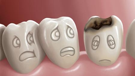 虫歯がある