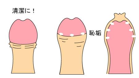 亀頭包皮炎の予防法