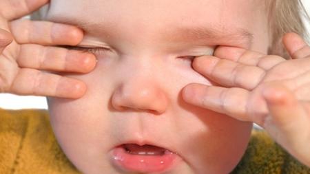 眠気以外に赤ちゃんが目をこするのはなぜ?