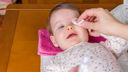 赤ちゃんに多い先天性涙鼻管閉塞