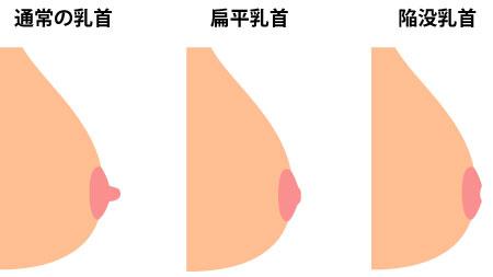 陥没乳首・扁平乳首