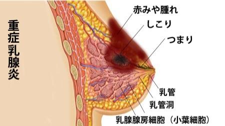 乳腺炎重症化