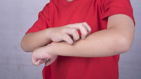 生まれてから皮膚炎 まさかのアトピー性皮膚炎