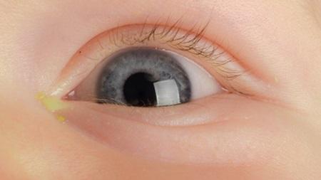 黄色い目やに
