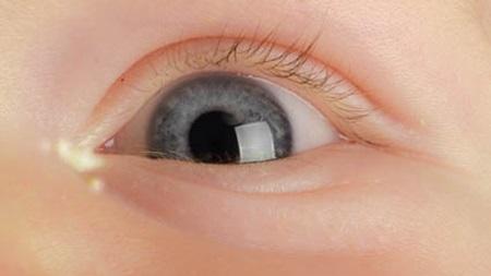 白い目やに