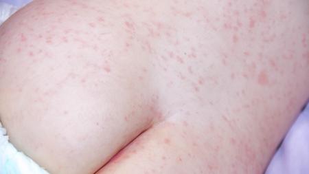 アトピー性皮膚炎の特徴とは?