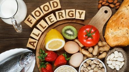 アレルギー物質を含む食べ物とは?