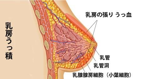 乳房うっ積