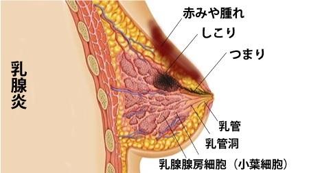 乳腺炎などのトラブル