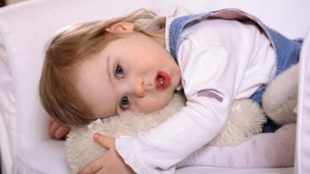 ダウン症の特徴について