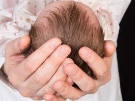赤ちゃんの頭皮の状態で知っておきたいこと うろこやかさぶた 頭皮の臭い
