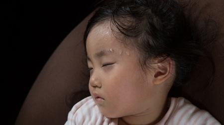 突発性発疹でかゆくて肌をかきむしり引っ掻き傷が・・
