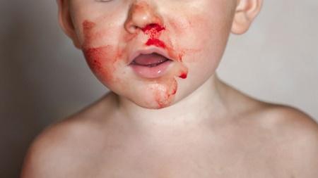 自分で鼻に!朝起きると血まみれでした