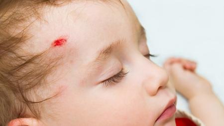 1歳2ヶ月 怪我 転ぶ 事故